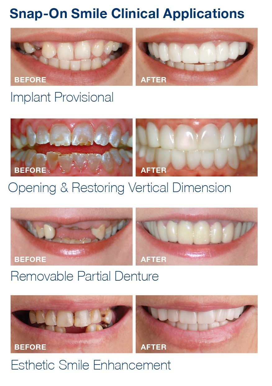 Snap On Smile | balhannah dental